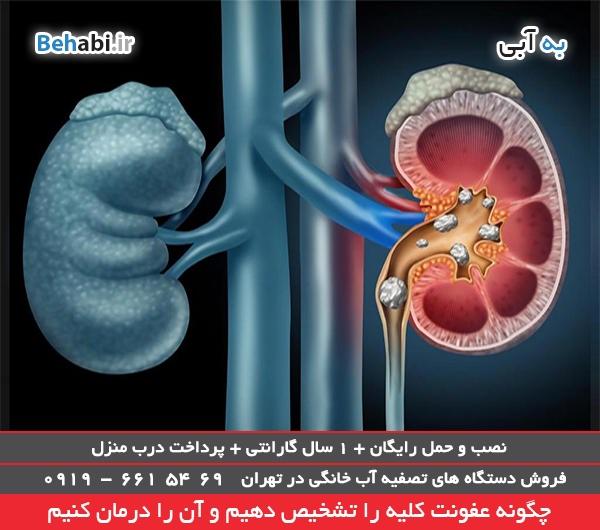 روشهای درمان عفونت های ادراری
